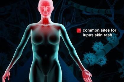 مرض الذئبة – اعراضها وانواعها وطرق التشخيص Lupus | magorange | Scoop.it