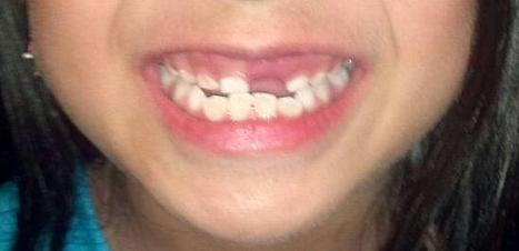 Gigi yang Sehat dan Sekelumit Permasalahannya | Medkes | Kesehatan | Scoop.it