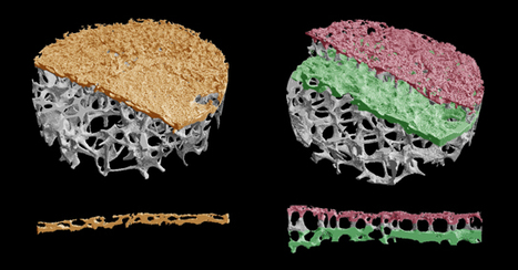 New anatomical structure discovered in human spine using micro-CT scanning | Amazing Science | Scoop.it