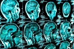 Concussions Following A Motor Vehicle Accident   California Brain Injury Attorney News   Scoop.it