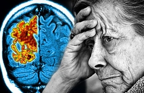 "Could The Cannabis Compound ""THC"" Cure Alzheimer's Disease? 
