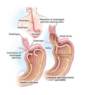 Pengobatan Alami Asam Lambung Yang Aman » Obat Sakit Liver Tradisional   Pengobatan Alami Untuk Mengatasi Osteoporosis   Scoop.it