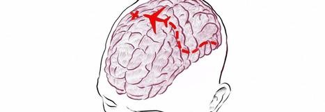Plasticidad a la carta para salvar cerebros | Biología de Cosas de Ciencias | Scoop.it