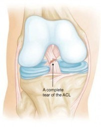 Anterior Cruciate Ligament (ACL) Tears : Prevention is the Goal - Howard J. Luks, MD | Sports Ethics: Payne, J. | Scoop.it