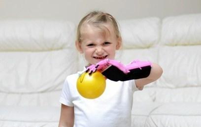 Scottish girl gets 3D printed prosthetic hand   Peer2Politics   Scoop.it