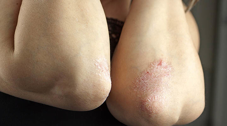 Psoriasis - Psoriasis, Skin Cells, Inflammatory - Life Extension Health Concern | Health & Life Extension | Scoop.it