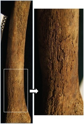 HONGRIE : Osteological and Biomolecular Evidence of a 7000-Year-Old Case of Hypertrophic Pulmonary Osteopathy Secondary to Tuberculosis from Neolithic Hungary | World Neolithic | Scoop.it