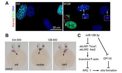 中科院:解析miRNA调控纤毛发生机制