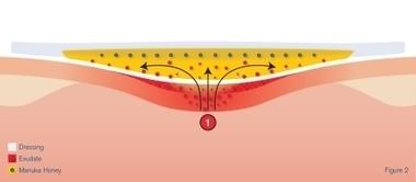 How Manuka Honey Dressings Work | Manuka Honey | Scoop.it