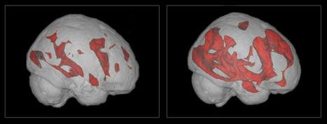 Brain Exercise | Developing Creativity | Scoop.it