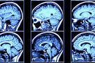 Criminal Minds Are Different From Yours, Brain Scans Reveal | Exploring Anthropology | Scoop.it