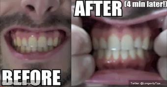 Brossage des dents : l'effet avec du curcuma ! | creativité et plateformes de mutualisations | Scoop.it