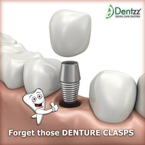 Introduction of new technology at Dental Implants India | Dentzz Dental Care | Scoop.it