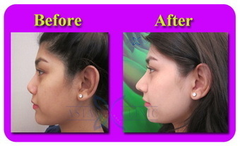 Nose Augmentation (Rhinoplasty) Photos | The Best Plastic Surgery Clinic In Bangkok Thailand | Scoop.it