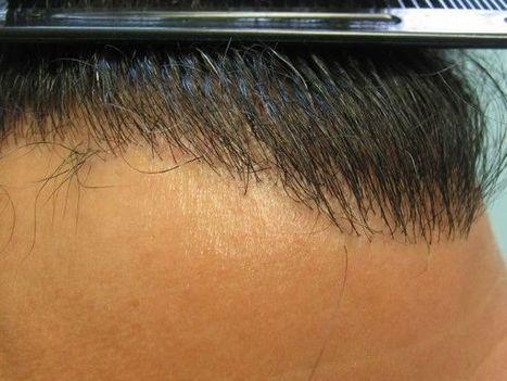 Best Hair Treatment – Hair Transplant Surgery   Royal Cosmetic Surgery   Scoop.it