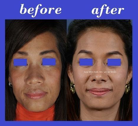 Nose Augmentation Photos Thailand | Bangkok Aesthetic Surgery Center | The Best Plastic Surgery Clinic In Bangkok Thailand | Scoop.it