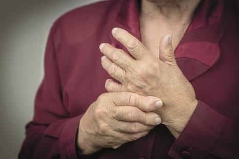 Case study: management and counselling of a patient with rheumatoid arthritis | Rheumatology-Rhumatologie | Scoop.it