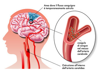 Accidente Cerebro Vascular (ACV) | Fisiohogar | enfermeria medicoquirurgica | Scoop.it