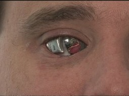 "Man Sees With ""Bionic Eye"" Has Video Camera Installed & Gets Job Offer From News Station To Go To Iraq (VIDEO) - American Live Wire 