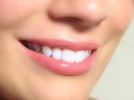 Guidelines for the best cosmetic dentistry treatment for you | Dental Health Service | Scoop.it