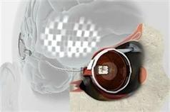 Bionic Vision Australia Working on Bionic Eye Implants | WonderBaby.org | Developments in Science & Medicine for People who are Blind | Scoop.it