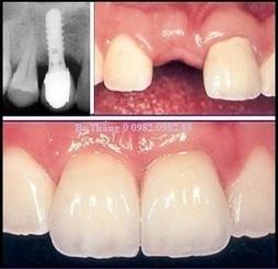 Implant nha khoa | Hoc thanh nhac | Scoop.it