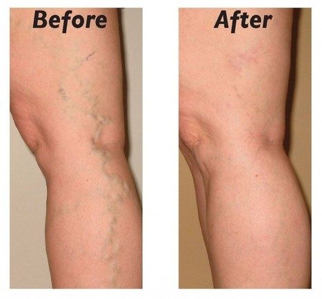 A Convenient Way to Eliminate Varicose Veins | Best website pages | Scoop.it