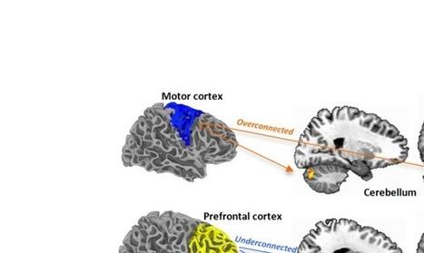 In children with autism, sensorimotor regions o...