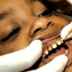 Students with dental disease face new obstacle in Medi-Cal rate cut - EdSource Today   Dentist For Kids   Scoop.it