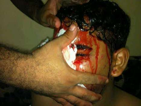 Sitra, Bahrain:  Injury due to Birdshot use against unarmed protesters! | Human Rights and the Will to be free | Scoop.it