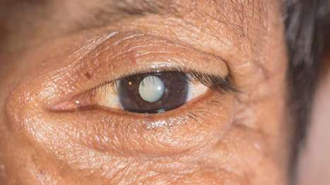 Eye drops could spell the end of cataract surgery | The future of medicine and health | Scoop.it