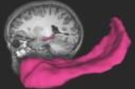 El amor materno favorece el desarrollo del cerebro del niño - Noticias de Salud   Enfermería en Salud Comunitaria y familia   Scoop.it