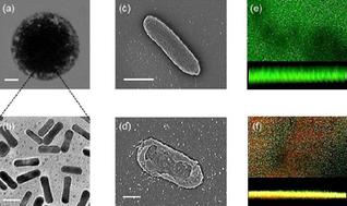 Photothermal effect of gold nanorod cluster disinfects biofilm #Nanotechnology | Nanaomaterials, Nanocomposites, Nanotechnology, Nanoprinting | Scoop.it