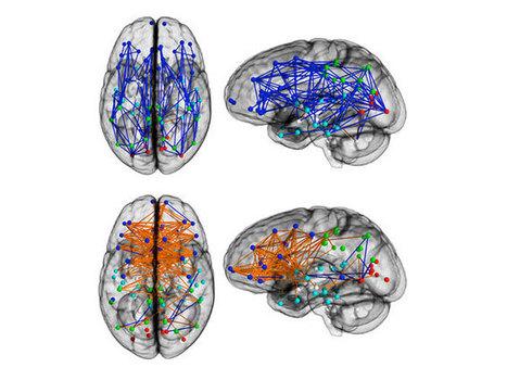 Hommes et femmes : des cerveaux différents | Sciences cognitives | Scoop.it