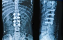 Spinal Fusion Surgery Following Trauma | Spinal Injuries and Paralysis News and Information | Scoop.it