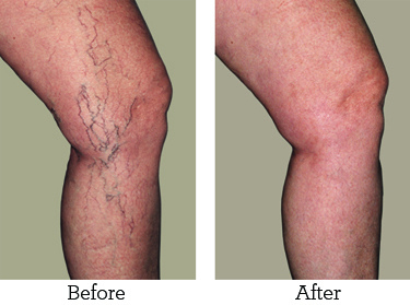 Endovenous Sclerotherapy – An Effective Procedure to Treat Varicose Vein | Best website pages | Scoop.it