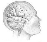 Head, Neck Injury May Triple Younger People's Risk for Stroke | Concussions | Scoop.it