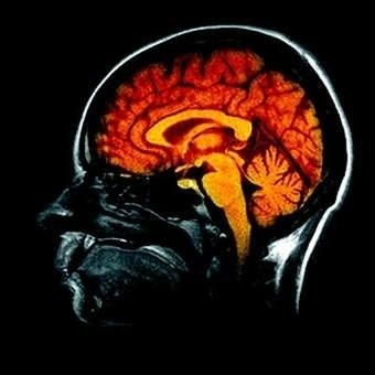 Le cerveau de l'homme flirte avec la physique quantique   Fonctionnement du cerveau & états de conscience avancés   Scoop.it