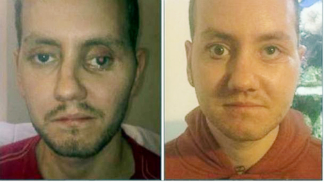 Reconstruction of man's face using 3D printer is 'major development' - The Bolton News | Technology inventions which will be useful in the future | Scoop.it