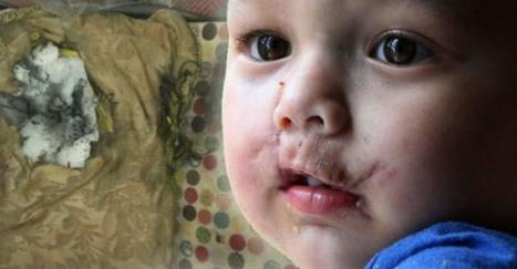 New Low: Sheriff's Office Claims Infant at Fault for SWAT Team Blowing His Face Apart with Grenade | Criminal Justice in America | Scoop.it