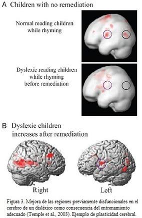 El futuro pasa por la Neuroeducación | APRENDIZAJE | Scoop.it