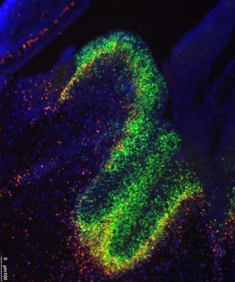 Brain Development Is Guided by Junk DNA that Isn't Really Junk | ucsf.edu | Institut Pasteur de Tunis-معهد باستور تونس | Scoop.it