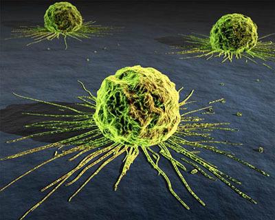 Can Rehabilitation for Cancer Patients Enhance Survivability? | Rehabilization | Scoop.it