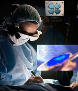Special glasses help surgeons 'see' cancer tissue during the operation | If We Can See It, We Can Eliminate It | Scoop.it