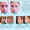 WHAT IS MIRACLE PHYTOCERAMIDES
