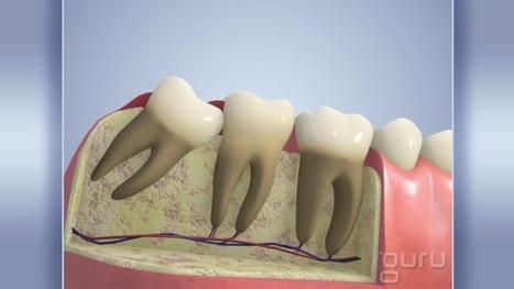 Wisdom Tooth Crowding | Pediatric Dentist | Scoop.it