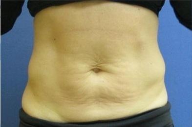 Venus Freeze Montreal | Laser Hair Removal Skins Montreal Plateau Mont-Royal | Skin tightening procedure, skin laser rejuvenation & tightening treatment clinic | Scoop.it