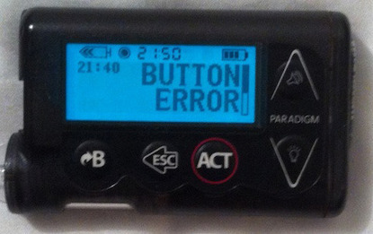 BUTTON ERROR on my Insulin Pump: Will Medtronic Come Through?|A Sweet Life | diabetes and more | Scoop.it