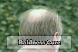 Things to Know About Baldness Cure | Baldness Cure | Scoop.it