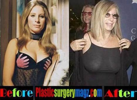 Barbra Streisand Plastic Surgery: Exclusive Plastic Surgeon Review | Celebrity Plastic Surgery News | Scoop.it